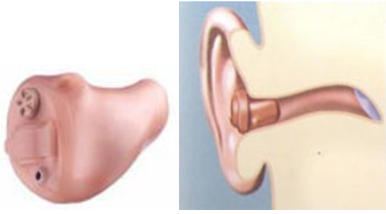 Hearing Aids  | Riverside, CA
